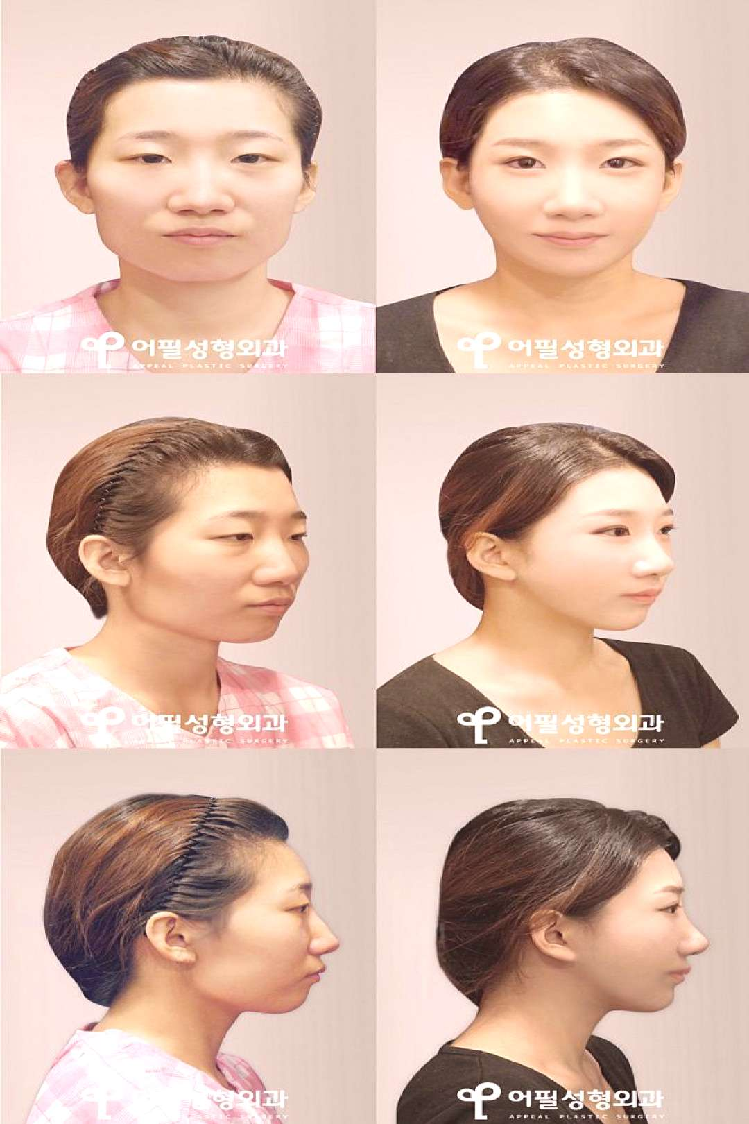 Korean plastic surgery before and after ... - Korean plastic surgery before and after photo Facia